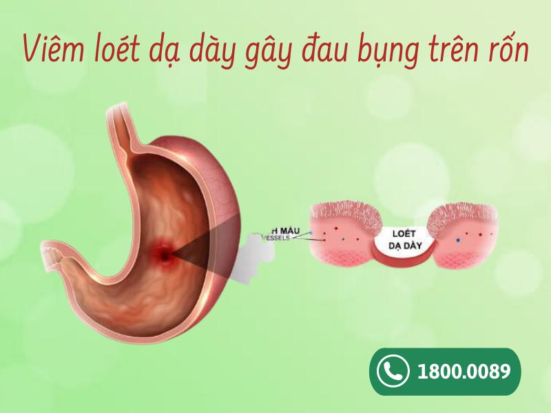 Viêm loét dạ dày gây đau bụng trên rốn