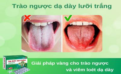 Trào ngược dạ dày lưỡi trắng là gì? Dấu hiệu và Cách điều trị