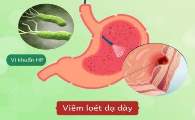 Vi khuẩn HP – Nguyên nhân hàng phổ biến gây viêm dạ dày