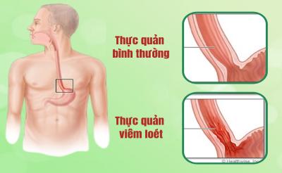 Viêm Loét Thực Quản – Biến chứng nghiêm trọng của Trào ngược dạ dày
