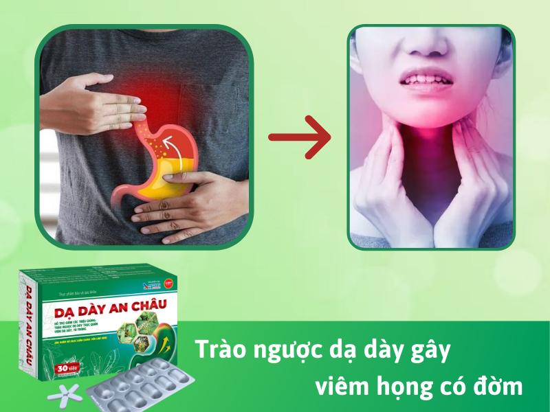 trào ngược dạ dày gây viêm họng có đờm